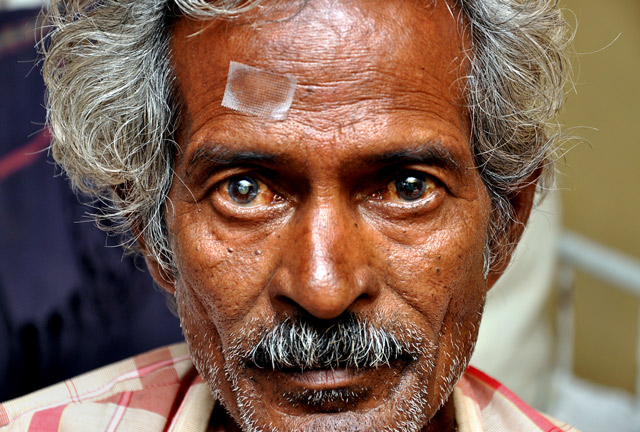 Indian Man With Tape Above His Eye