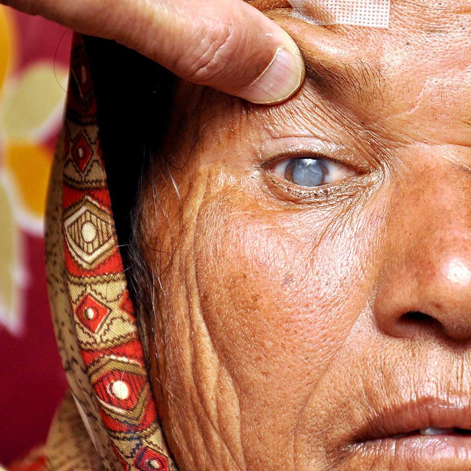 Woman with cataract during eye exam